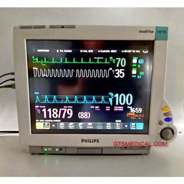 philips intellivue mp70 user manual today manual guide trends sample u2022 rh brookejasmine co Philips Cardiac Monitors Philips Cardiac Monitors